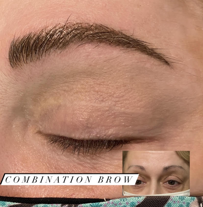 Combination Brow (5)