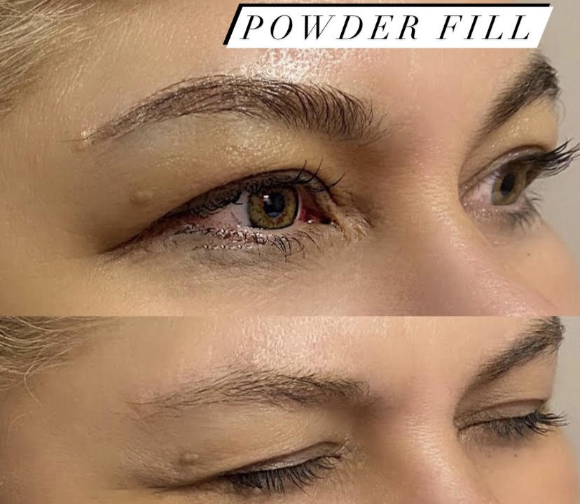 Powder Fill (3)